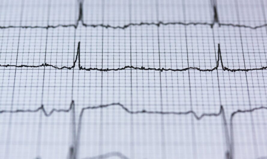 Muerte súbita cardiaca, puede detener corazones aparentemente sanos